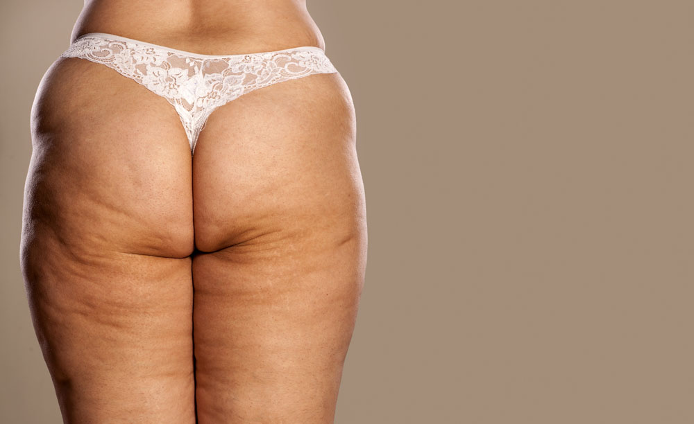 Love my cellulite? No thanks.