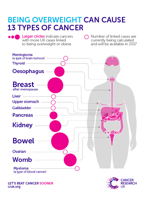 Being overweight can cause 13 types of cancer