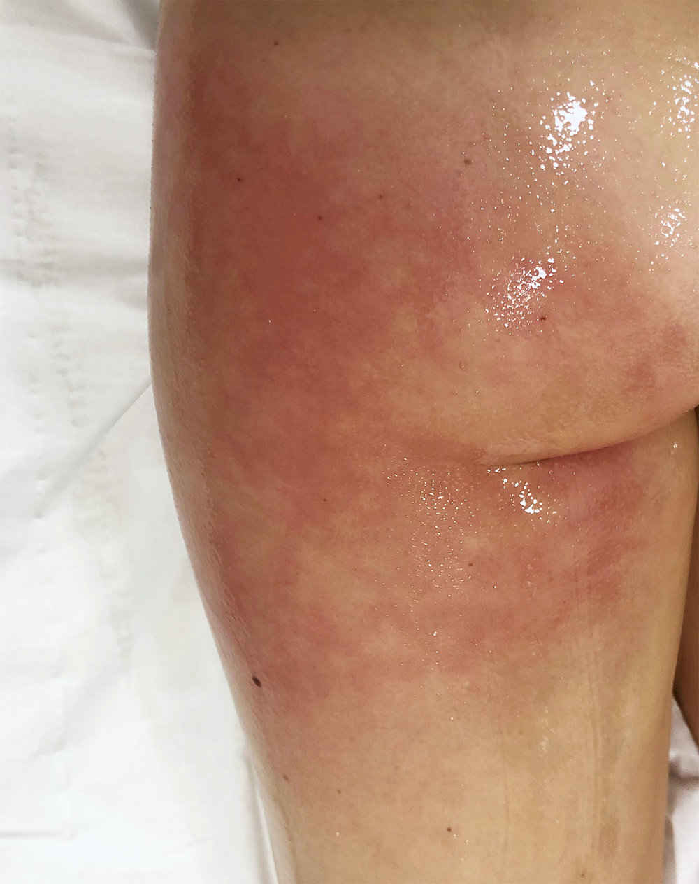 Cellulite: poor circulation and lymphatic drainage vs fat accumulation on the skin