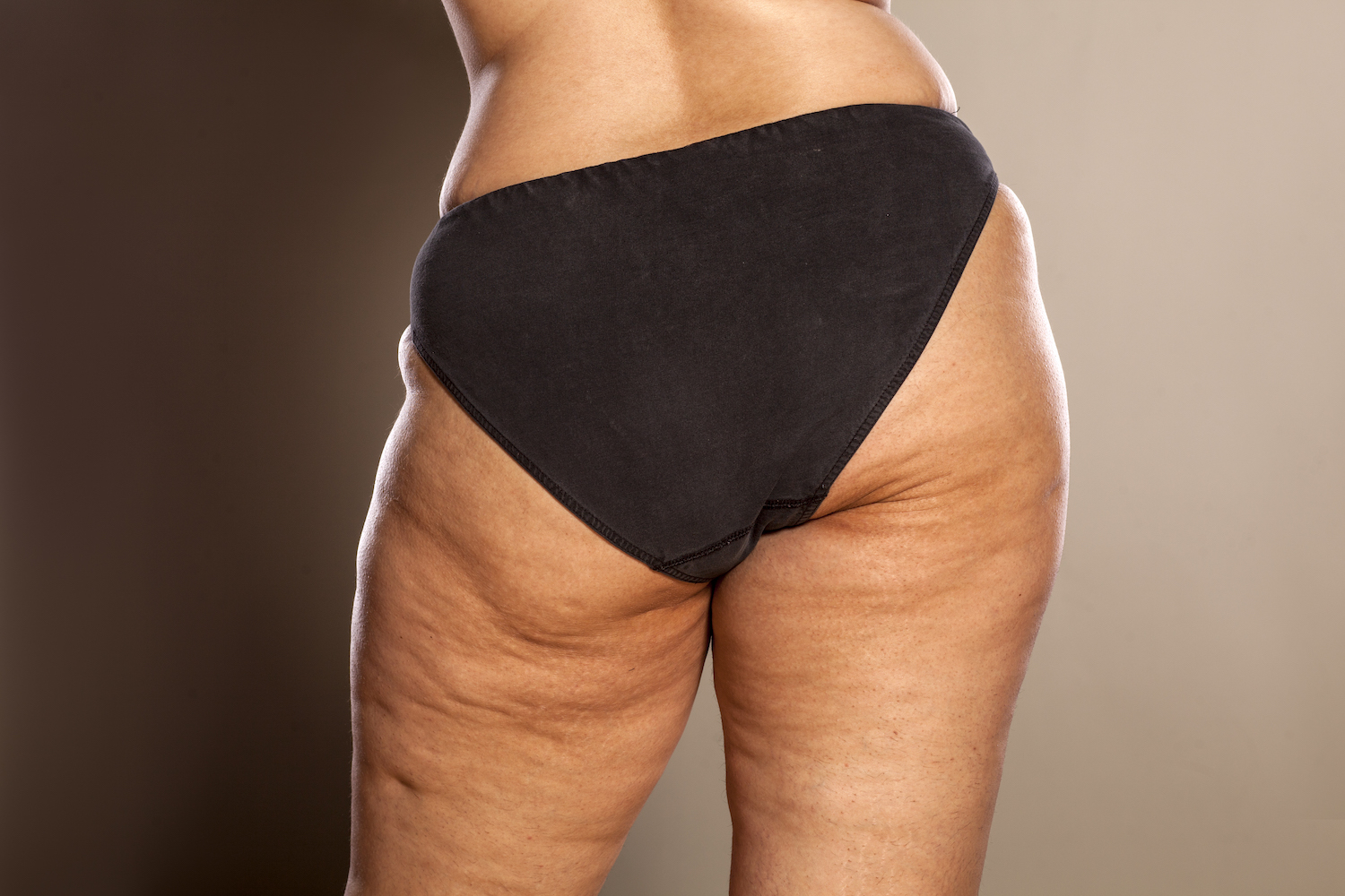 Is Cellulite Normal The Cellulite Experts Lipotherapeia