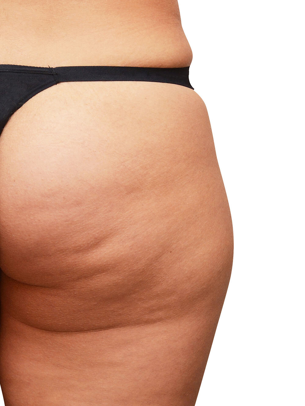 My Thighs Got Bigger Overnight What Causes Sudden Cellulite The Cellulite Experts Lipotherapeia