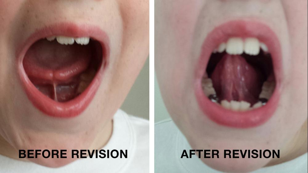 Tongue Tie and Upper Lip Tie — Tiny Sparks WA