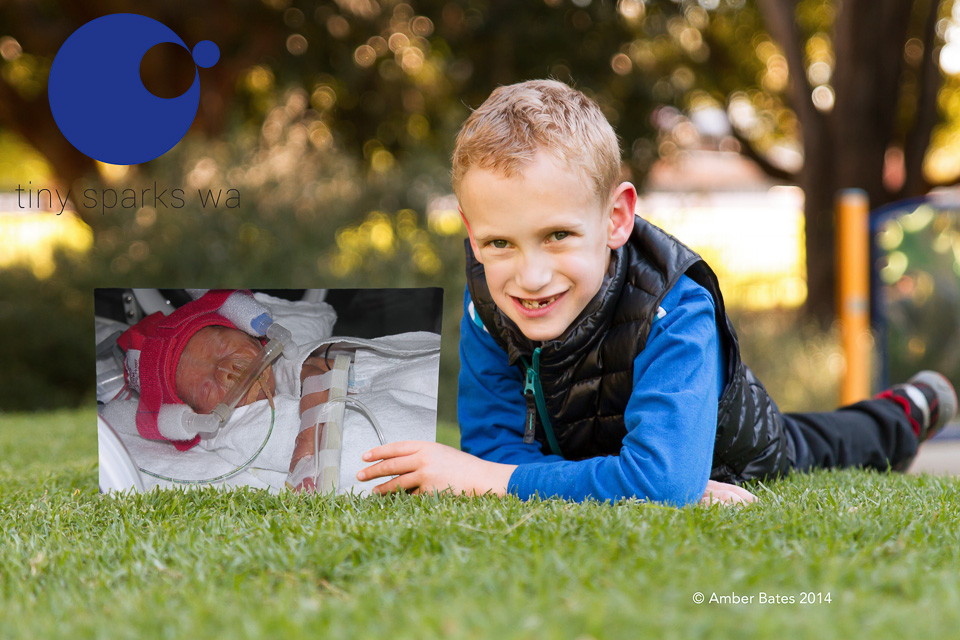 Hayward born 27 weeks, 870g due to pre-eclampsia.