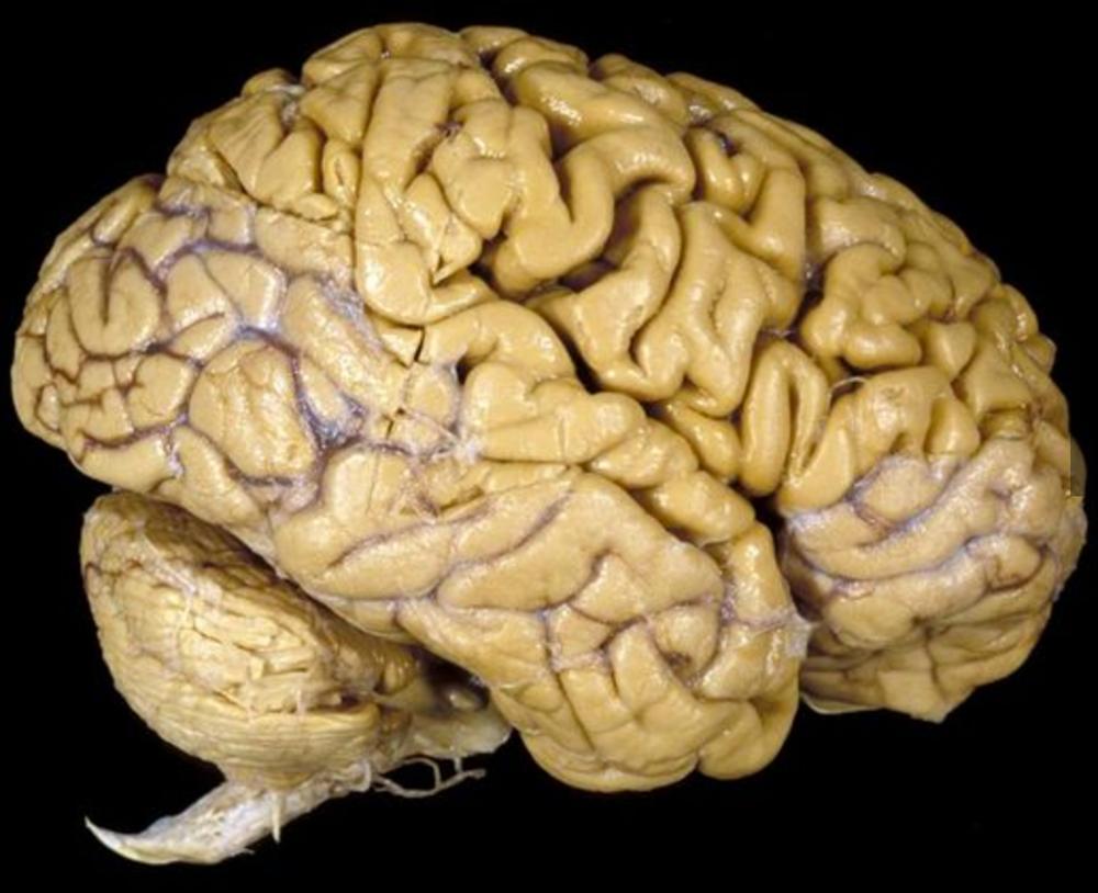 brain, gross anatomy