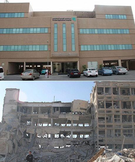 Halep, El Kindi Hastanesi, 2012 ve 2013…