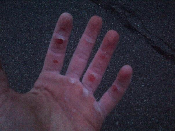 Crossfit + Climbing = Major flappage!