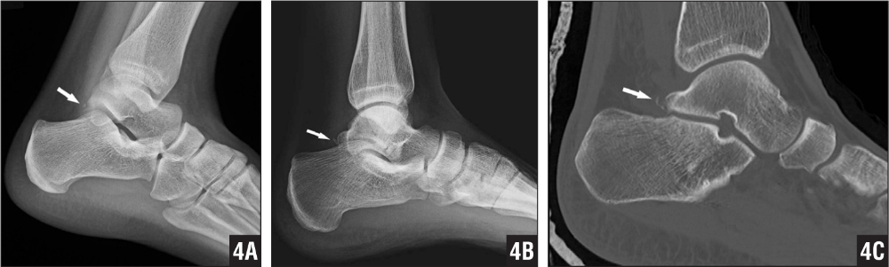 A patient with a fracture of the Stieda process