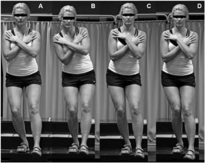 Crossley et al (2009): Examples of Single Leg Squat. A) good performance; B) poor overall and trunk performance; C) poor pelvis and hip performance; D) poor hip and knee performance.