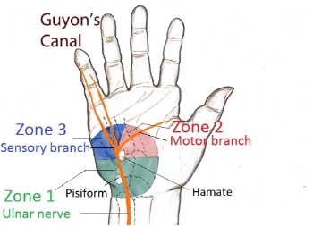 Guyon's Canal entrapment (courtesy of www.google.com)