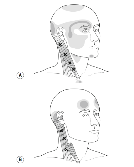 Somatic referral mapping of sternocleidomastoid (Selvaratnum, et al., 2009, Headaches, Orofascial Pain, and Bruxism. Elsevier, p. 72).
