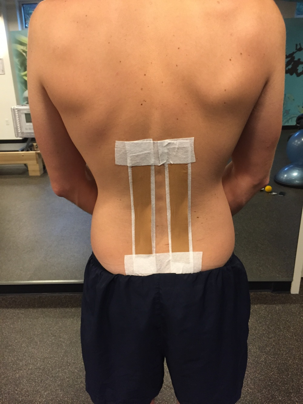 Taping with vertical strips will block lumbar flexion. I use this taping when I am trying to increase proprioception and patient awareness about their lumbar flexion during functional movements.