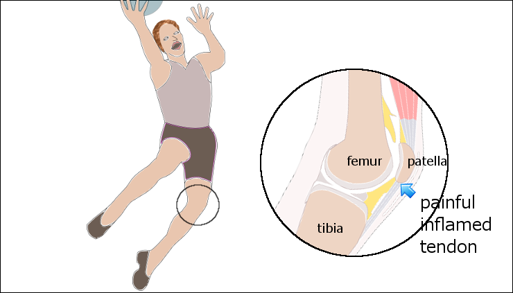Patella Tendinopathy & the 4-stage management program for ...