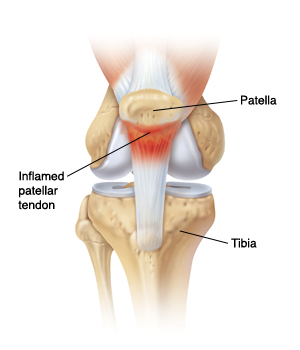 Patella Tendinopathy The 4 Stage Management Program For Jumper S