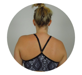The role of the scapula in shoulder impingement: Part 2