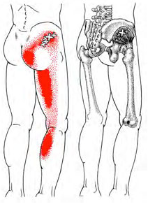 Image courtesy of Google Images of MTP of gluteus minimus