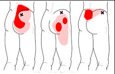 Image courtesy of Google Images of MTP of gluteus medius