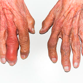 http://www.healthline.com/hlcmsresource/images/slideshow/rheumatoid-arthritis-symptoms-women/285x285_Rheumatoid_Arthritis_Symptoms_In_Women_Deformity_7a.jpg