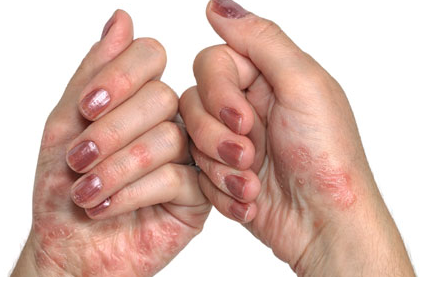 http://images.medicinenet.com/images/psoriasis-hand.jpg