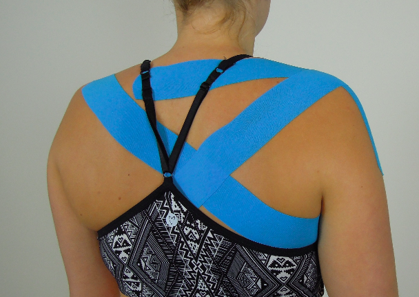 Taping scapula upward rotation, elevation & posterior tilt
