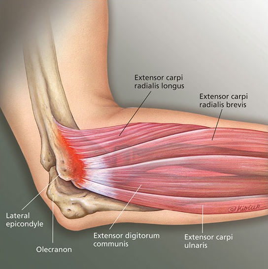 Image source https://emmakanblog.files.wordpress.com/2015/05/jmm_lateral_epicondylitis_tennis_elbow-e1431135972352.jpg