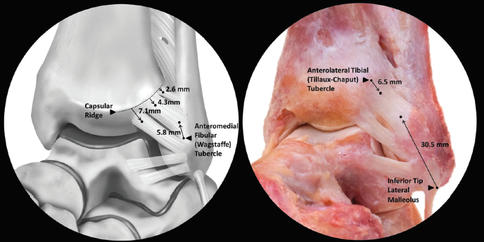 Picture 2. Anterolateral view of AITFL. (Williams 2015, pg 93).
