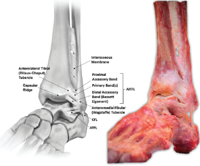 Ankle syndesmosis ligaments
