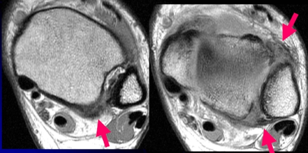 MRI of ankle syndesmosis injury. Arrows show AITFL and PITFL injury damage