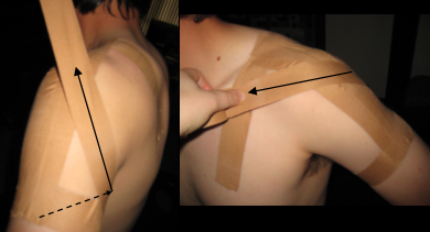 Start under arm, tape around back of arm