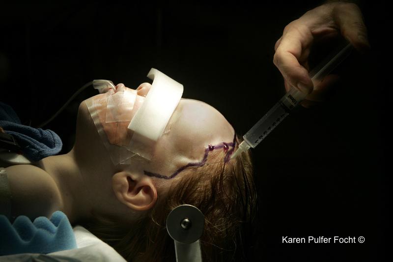 ©Focht- Brain Surgery.JPG