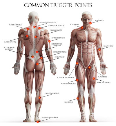 common trigger points in the body