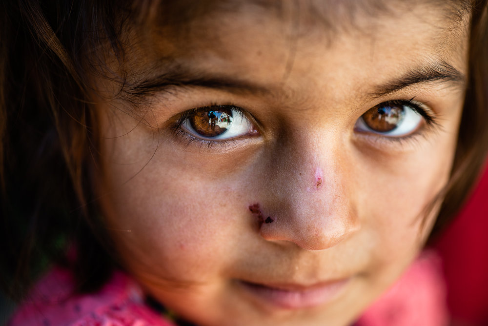 A litle girl in the refugees camp of Khanik, near Douhk