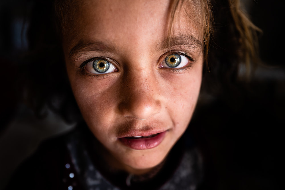 A little girl with many scars on his body and two incredible eyes. Sinjar mount