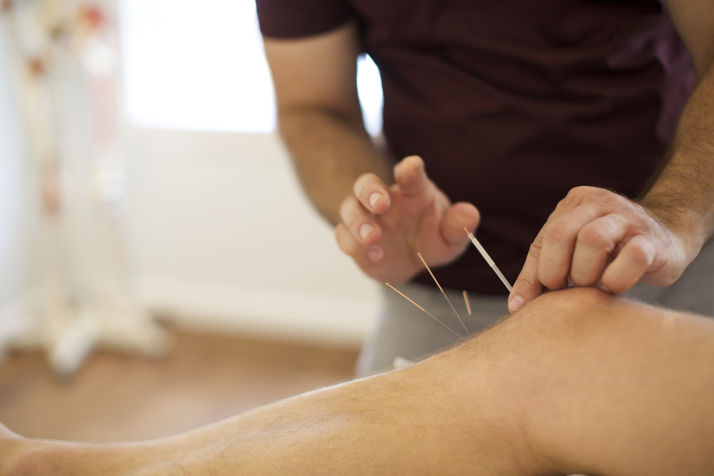 Dr. Nick Acupuncture