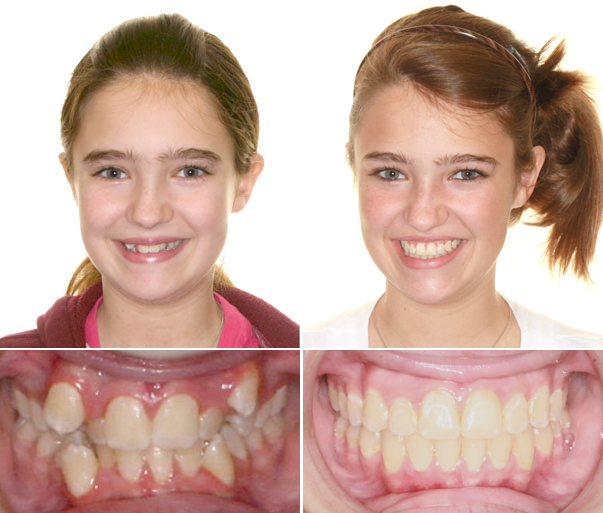 Before and after adult braces