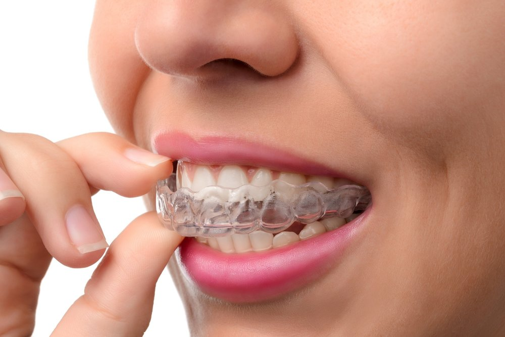 Invisalign Aligners can be removed and placed back. They're virtually unnoticeable.