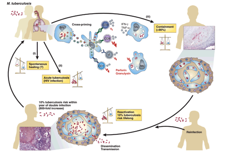 Tuberculosis Lungs Diagram