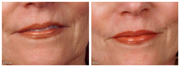 Reduction of lines and wrinkles, an improvement of skin elasticity.