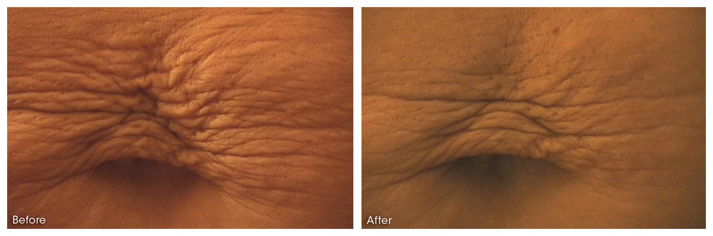 Micro needling can even be effective for stretch marks.