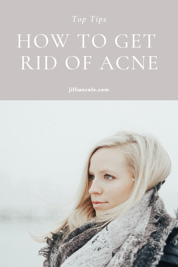 how to get rid of acne jillian cole