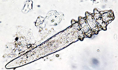 demodex(1).jpg