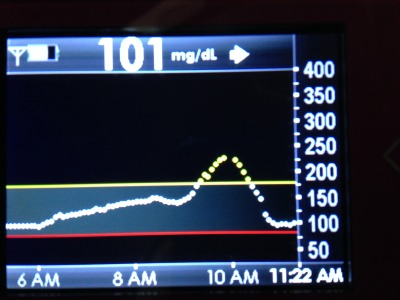 Feed the adrenaline bolus.JPG