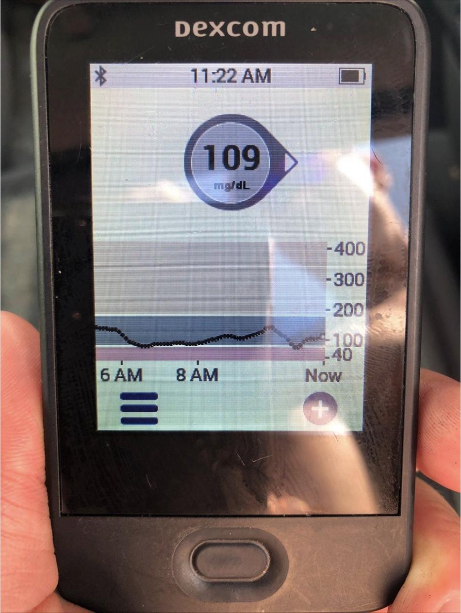 Kris Freeman's Triathlon with Dexcom and Omnipod