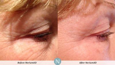 Nerium AD pic.jpg