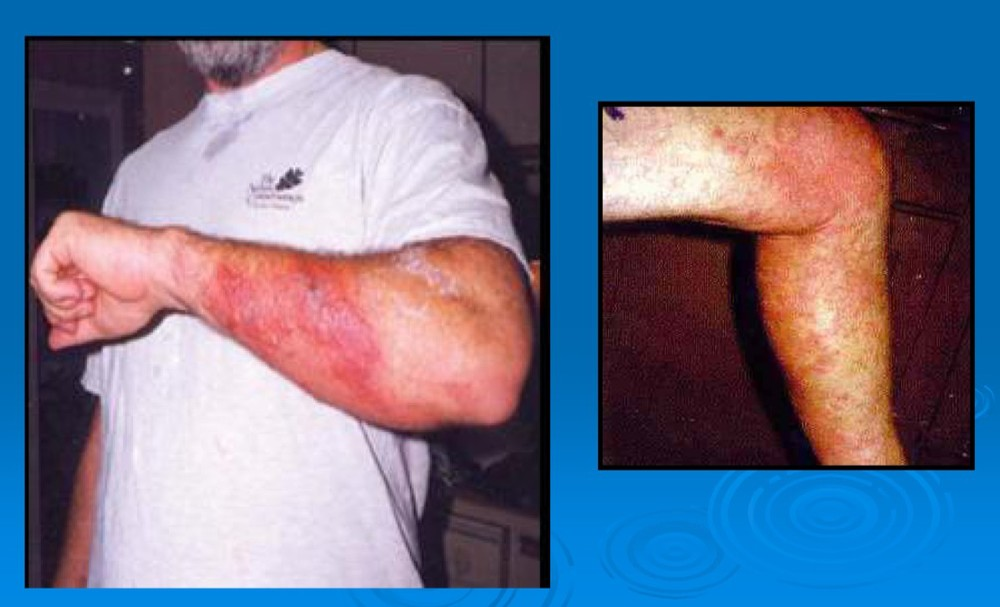 Rashes from exposure to toxic blue-green algae in a lake. Source: Florida Water Coalition