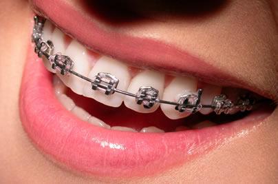 Convenios - ortodontia.jpg