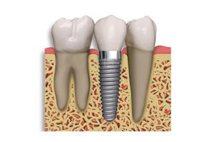 Convenios - Centro de implantes.jpg