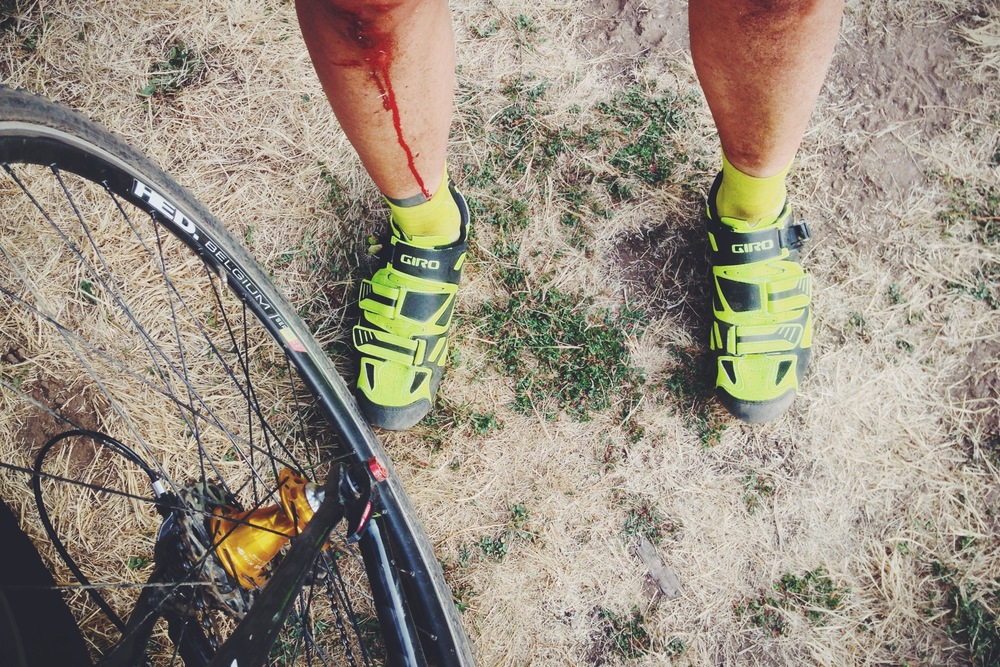 If you race enough cross, sooner or later you're going to go down. There's a little more blood in summer cross because there's no slippery layer of mud to cushion your fall.