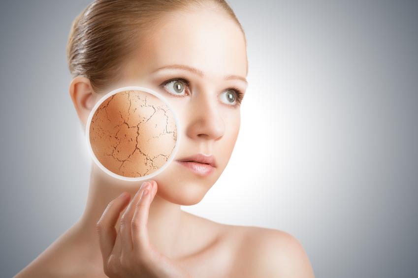 ss-dry skin.jpg