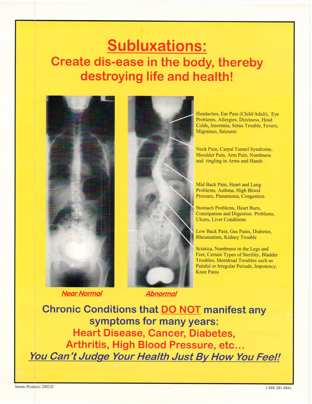 Do you know anybody with Scoliosis?
