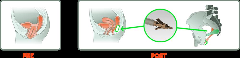 NeuGuide for uterine prolapse treatment